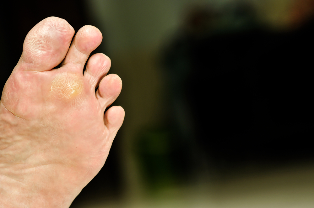 Where On The Feet Does A Plantar Wart Develop